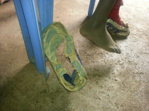 The school shoes on the child we are concerned about.